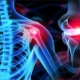 Best Orthopaedic Treatment in Kerala